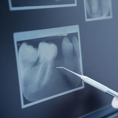Endodonzia - Studio dentistico Di Caprio