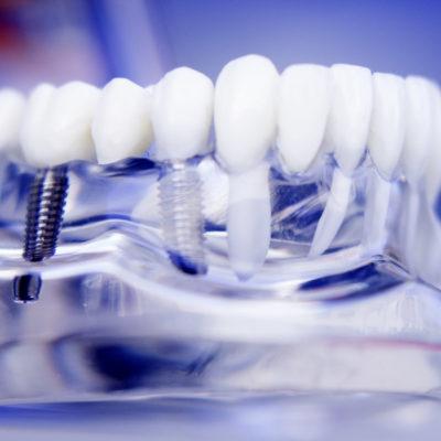 Implantologia - Studio dentistico Di Caprio