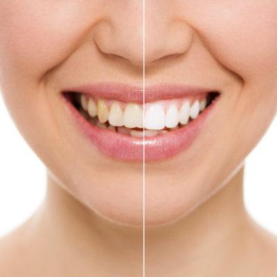 Sbiancamento - Studio dentistico Di Caprio