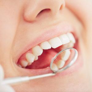 Parodontologia - Studio dentistico Di Caprio
