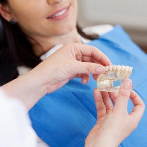 Protesi - Studio dentistico Di Caprio