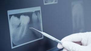 Trattamenti - Studio Dentistico Di Caprio