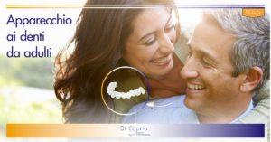 apparecchio ai denti da adulti | Studio Dentistico Di Caprio | Dentista a Vairano Scalo