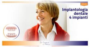 Implantologia su 4 impianti | Dentista a Vairano Scalo | Studio Dentistico Di Caprio|