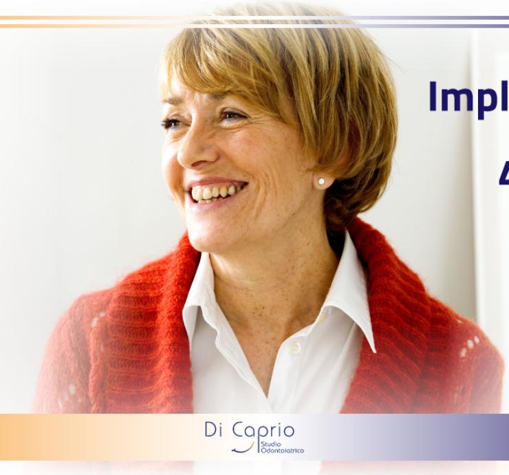 Implantologia su 4 impianti   Dentista a Vairano Scalo   Studio Dentistico Di Caprio 