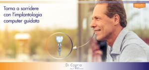 Implantologia computer guidata | Studio Dentistico Di Caprio | Dentista a Vairano Scalo