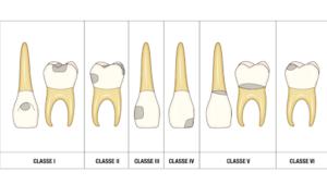 Studio Dentistico Di Caprio | Dentista a Vairano Scalo | Carie Dentale
