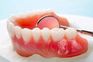 dentiera impianto dentale